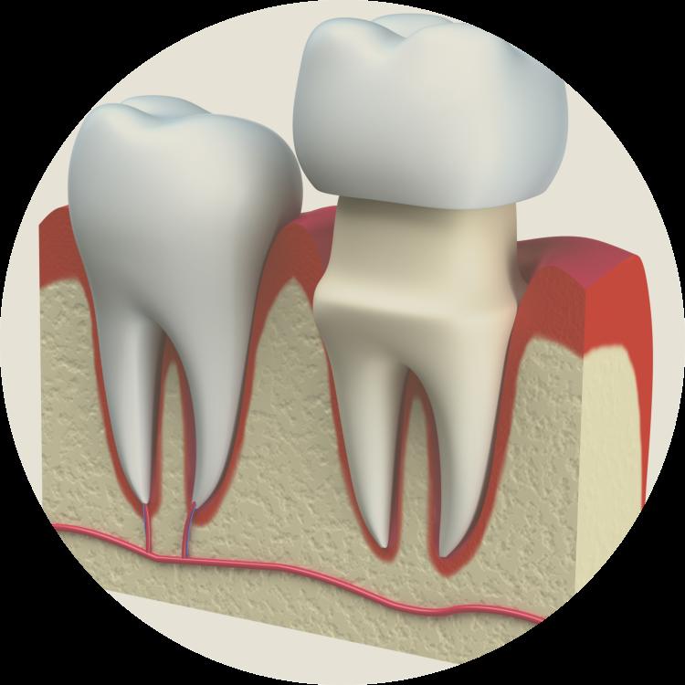 aline dental associates- dental crown